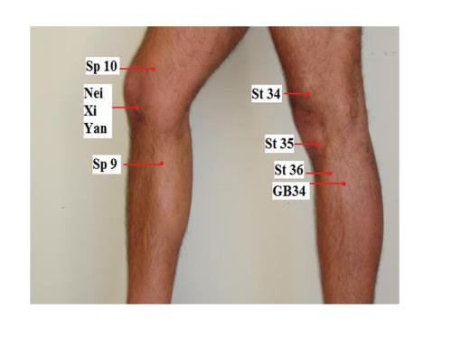 28 Knee Pain And Osteoarthritis Jun Xu M D 203 637 7720