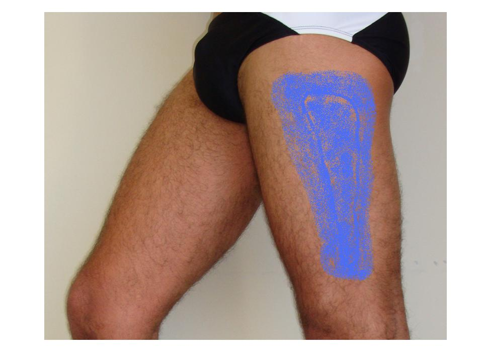 lateral thigh pain and and numb | jun xu, m.d. (203) 637-7720, Muscles